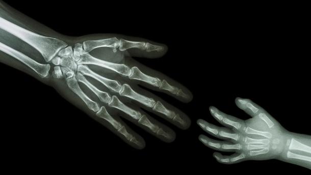 علاج امراض العظام